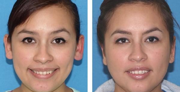 NEW Ear Surgery 5 x 2.5 b