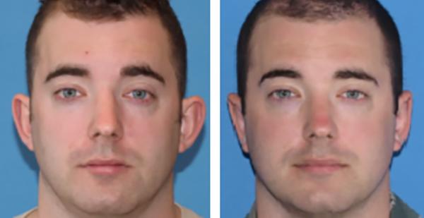 NEW Ear Surgery 5 x 2.5
