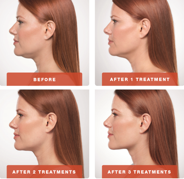 kybella-4-treatments