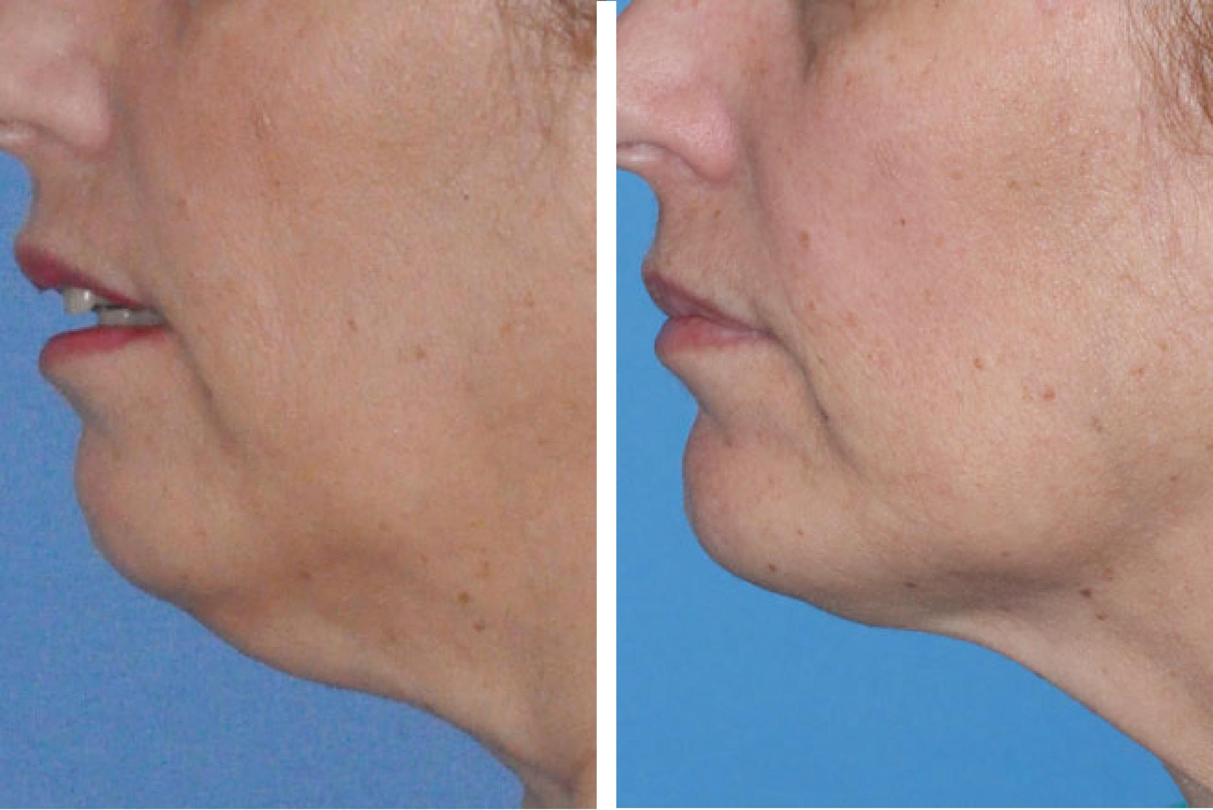 Chin Implant 55