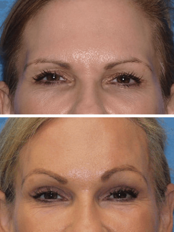 Brow Lift Gallery Renewedlook Facial Cosmetic Surgery Dr