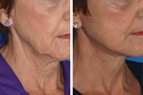 face and neck lift 10