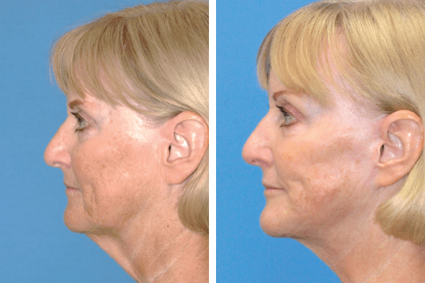 face and neck lift 5