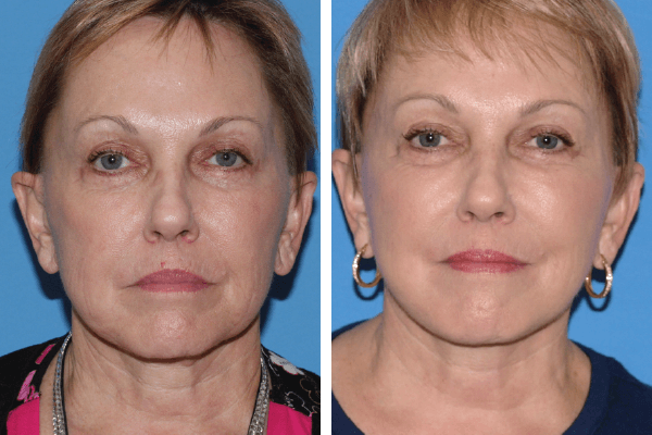 face and neck lift 6