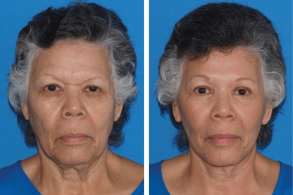face and neck lift 8