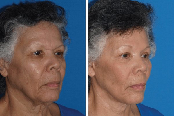 face and neck lift 9
