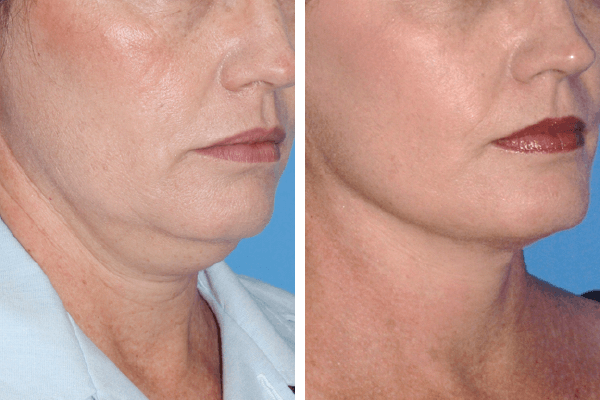 face and neck lift 3