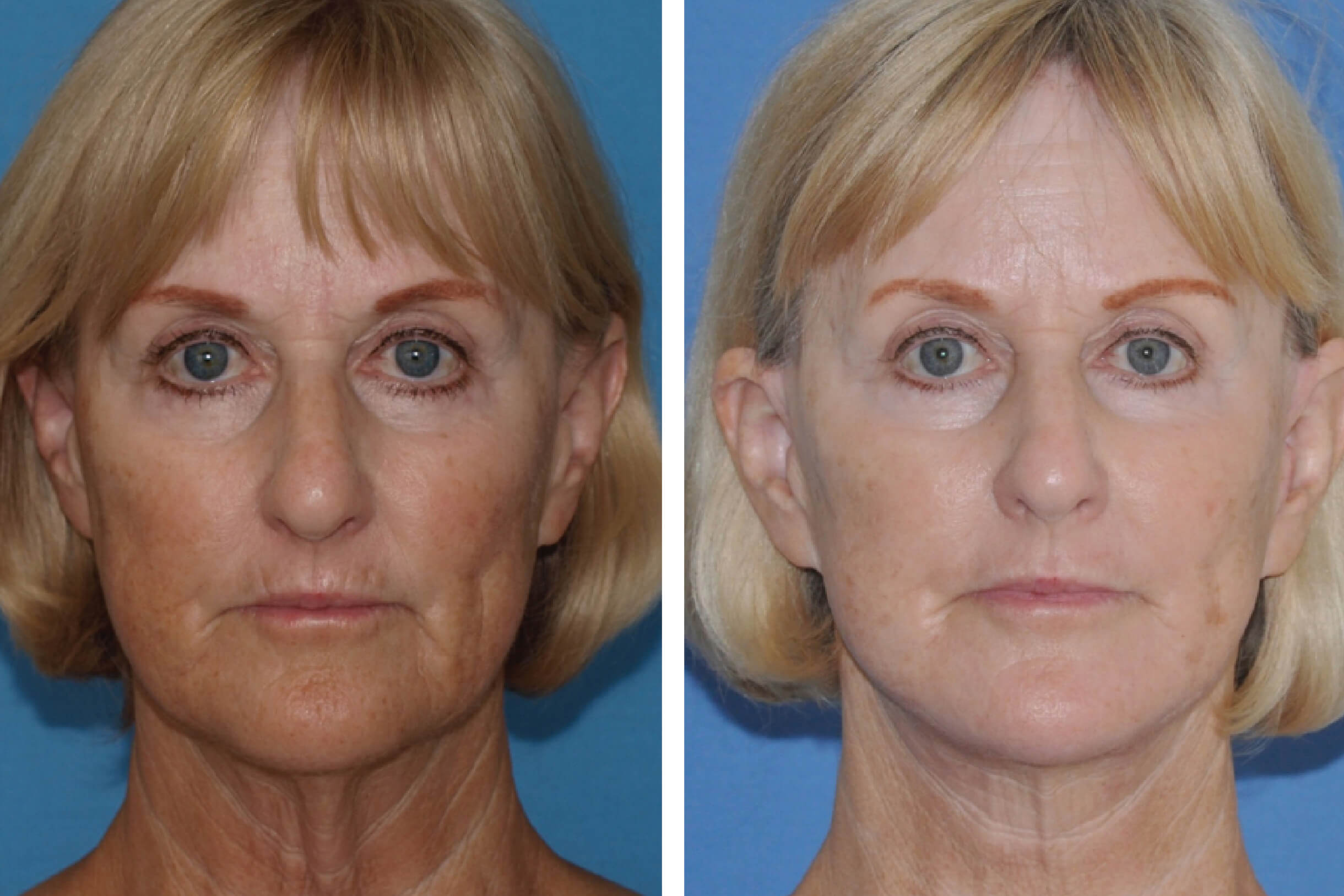 face and neck lift 4
